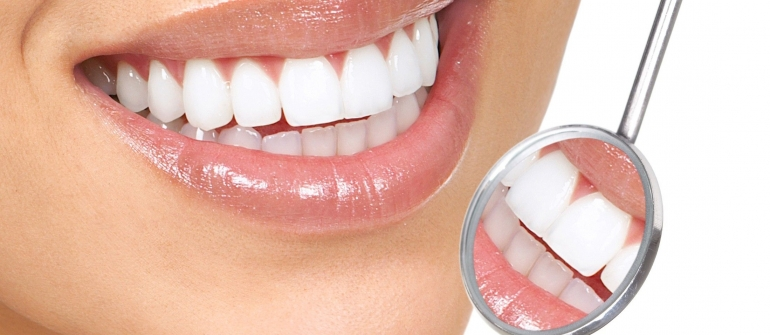 Your Teeth Whitening Options In Grimsby ON