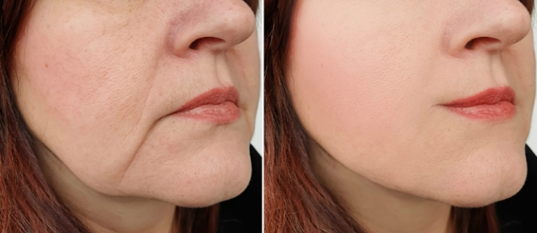 Cosmetic Treatments to Use Before a Facelift Becomes Necessary